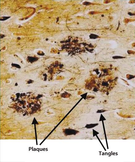 図1.  アルツハイマー病患者脳の老人斑と神経原線維変化 (Blennow K, et al 5) )