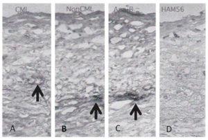 図2. 細胞線維性内膜肥厚部中のAGEs