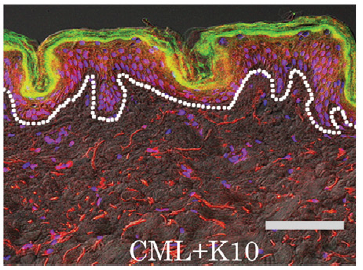 図3 表皮中の CML蓄積