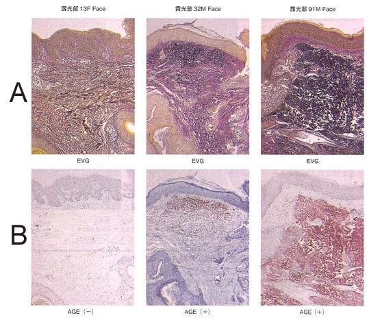 図2 加齢と日光暴露に伴う皮膚中CMLの蓄積